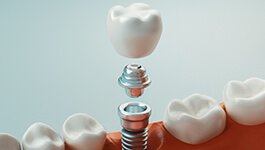 computer illustration of a dental implant with a crown