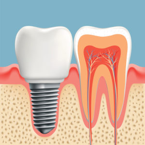 If you're missing a tooth, don't be embarrassed and let your oral health suffer! Work with Dr. Ron Schumacher and get the best dental implants in Lynnfield, MA.