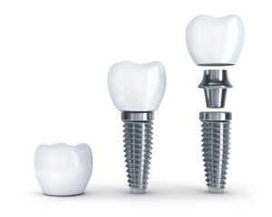 Have you thought of replacing your tooth with a dental implant in Lynnfield?
