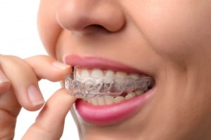 A person using clear aligners.