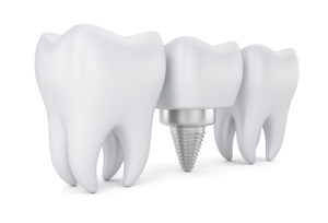 teeth and dental implant
