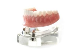 Denture being placed on implants