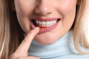 woman dealing with gum disease risk factors
